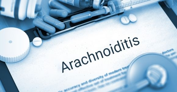 Causes, Symptoms, and Treatment Options for Arachnoiditis