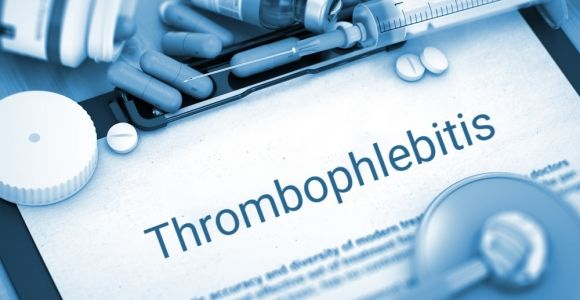 Causes, Signs, and Treatments of Thrombophlebitis