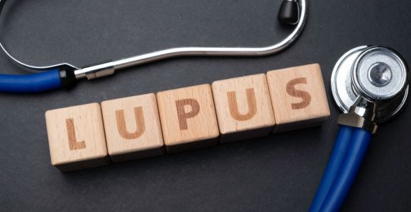 10 Signs of Lupus