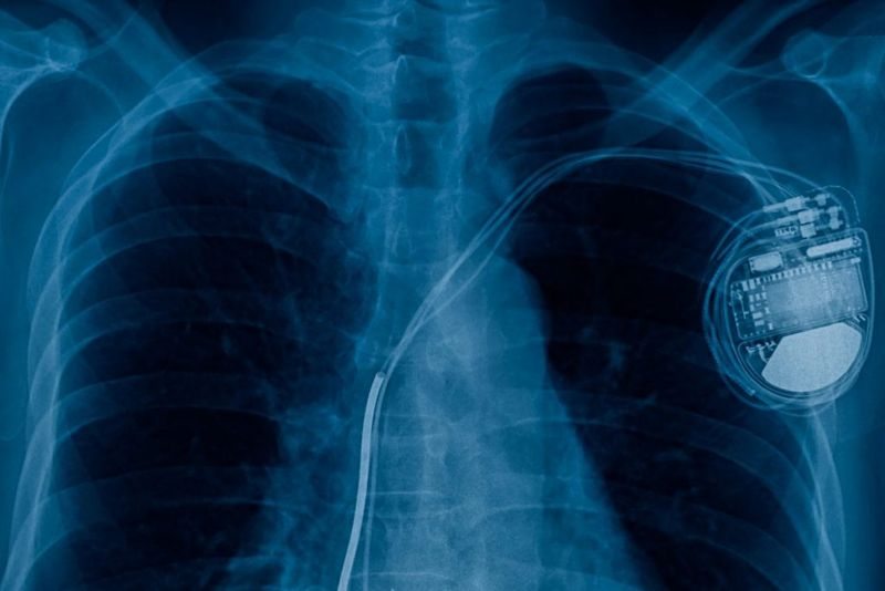 benign tumor thrombosis pacemaker