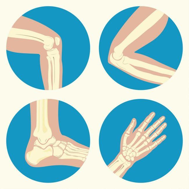ollier enchondromas bone tumors cartilage