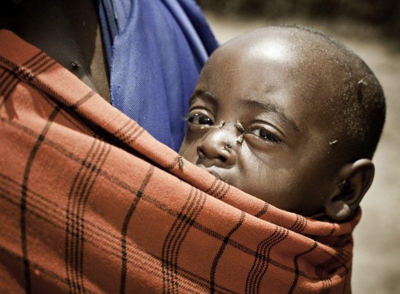 flies trachoma children infected