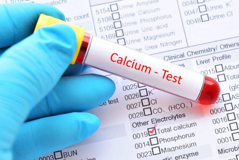calcinosis cutis calcium salt crystals