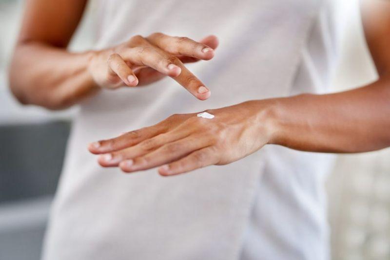corticosteroid creams bite reactions