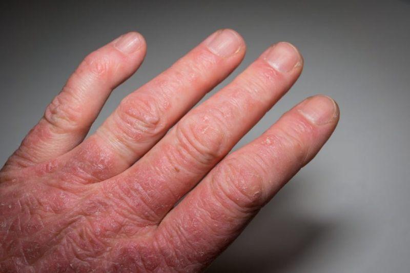 Sausage Finger Swelling