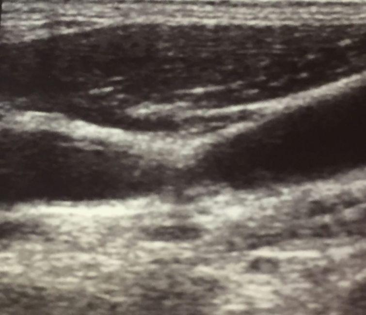 carotid stenosis narrowing artery restriction
