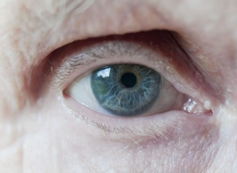 internal external ophthalmoplegia iris