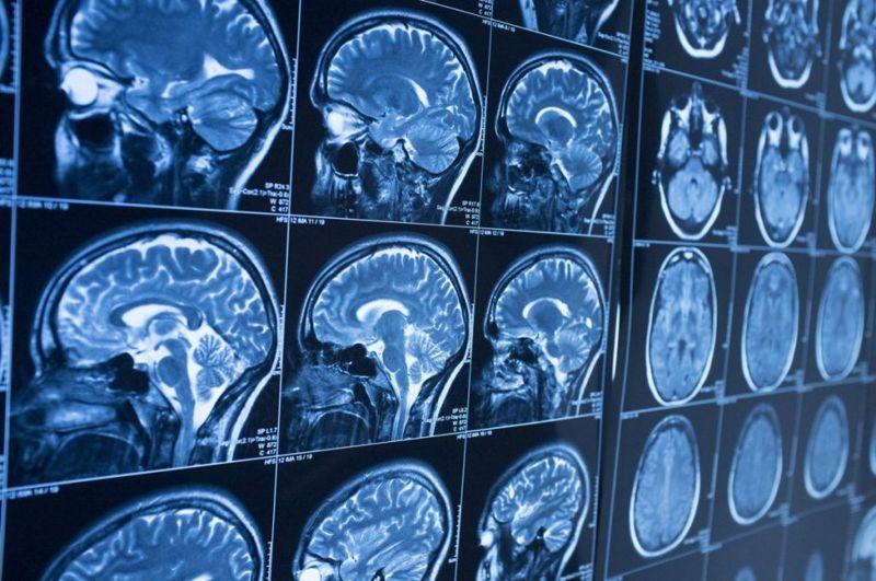 pituitary gland brain hormones