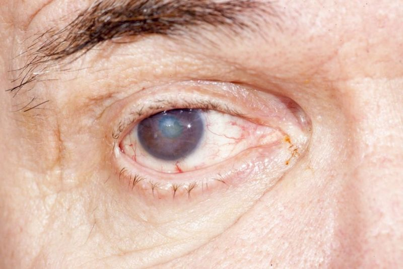 corneal clouding scraping reinfection