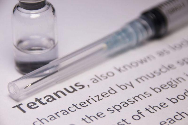 Tetany Tetanus Carpopedal Spasms Difference