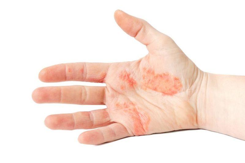 eczema hydration pompholyx