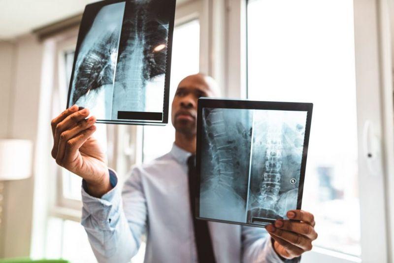 spine xray vertebrae