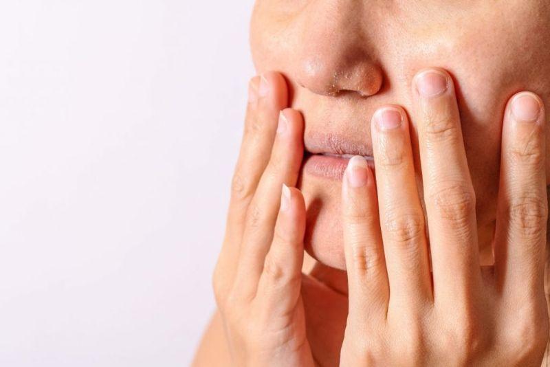Dry skin and eczema cream