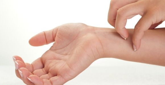 10 Causes and Triggers of Eczema