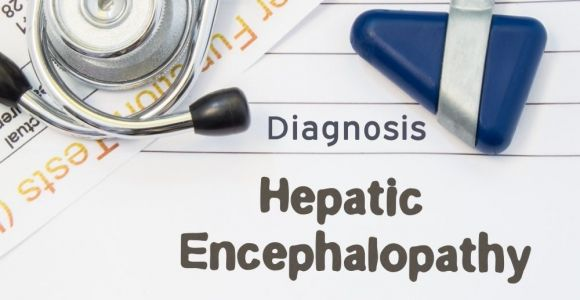 Advanced Liver Disease Leads to Hepatic Encephalopathy