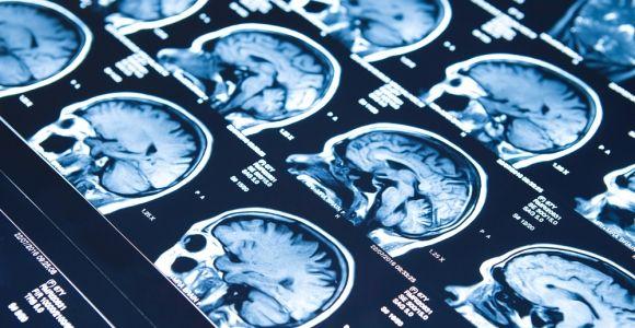 10 Symptoms of Epilepsy