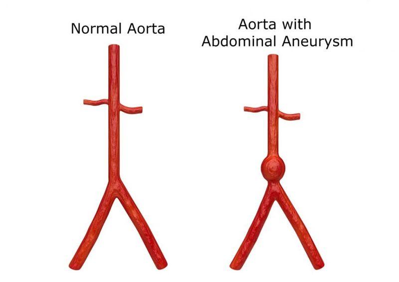 Aortic aneurysm artery sudden life-threatening