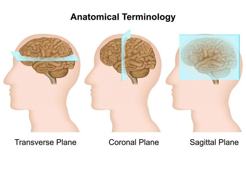 Coronal Sagittal Frontal Transverse Plane