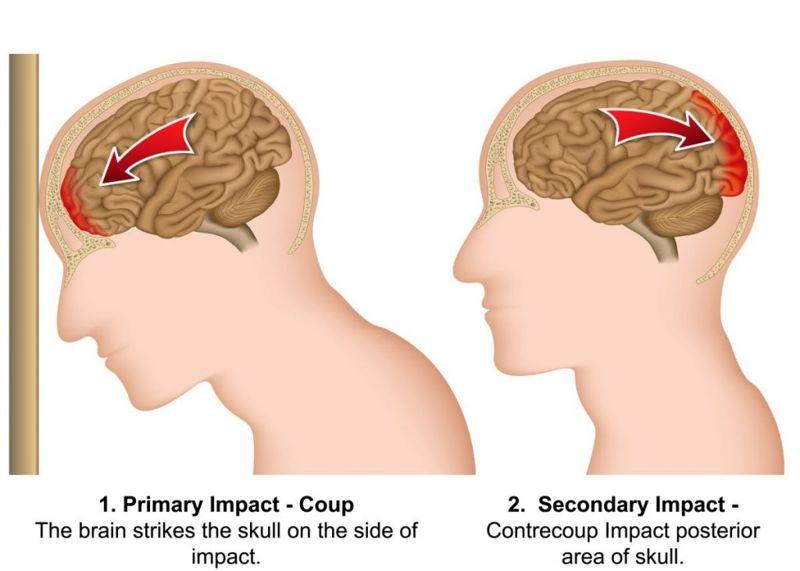 Contrecoup TBI swelling