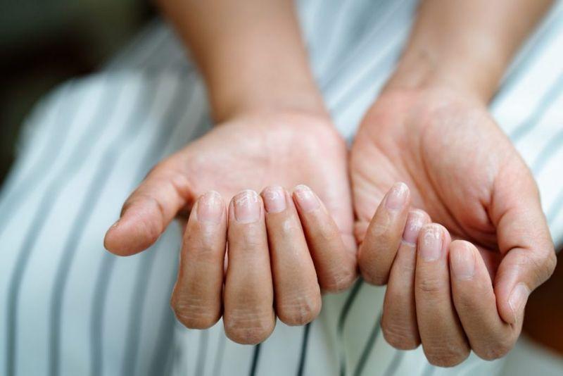 brittle nail whitening
