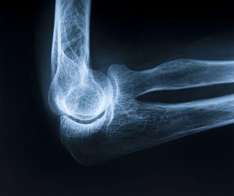 enthesopathy chronic inflammatory disease injury