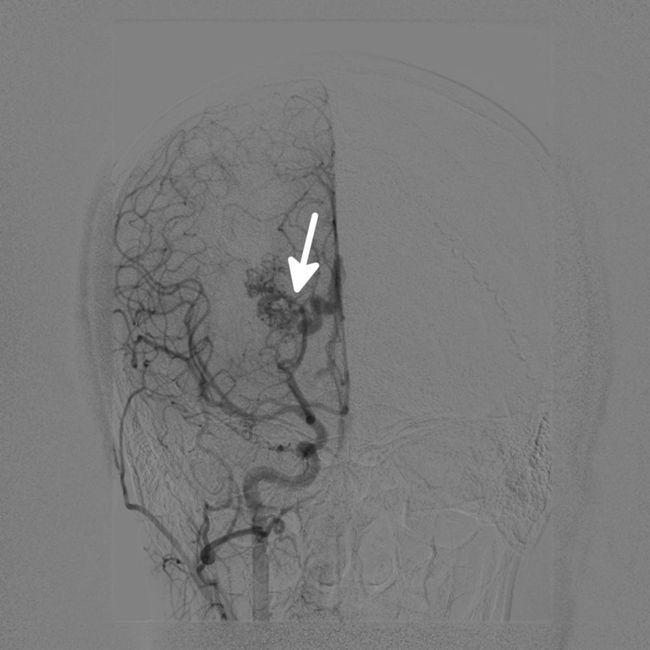 Meninges vascular lesions