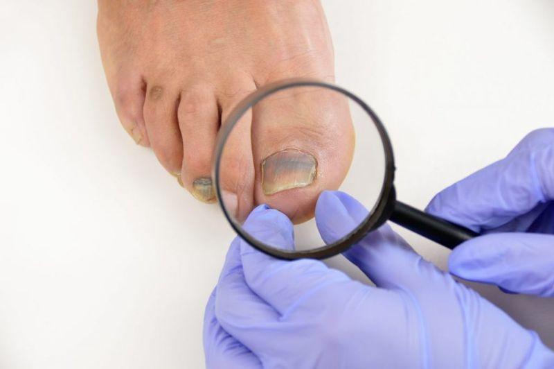 Medical examination of nail