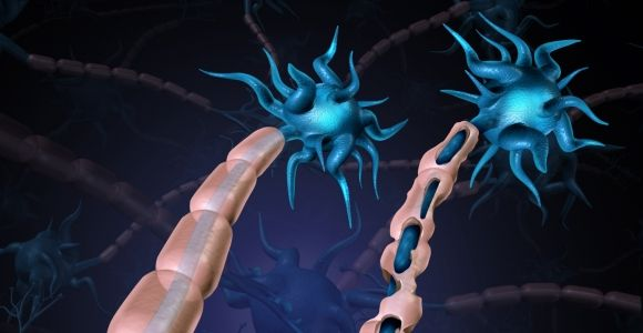 Causes and Effects of Demyelination