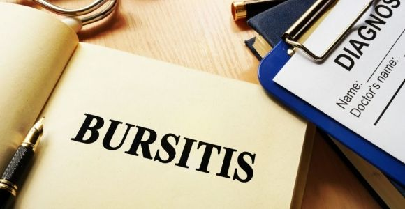 10 Treatments of Bursitis