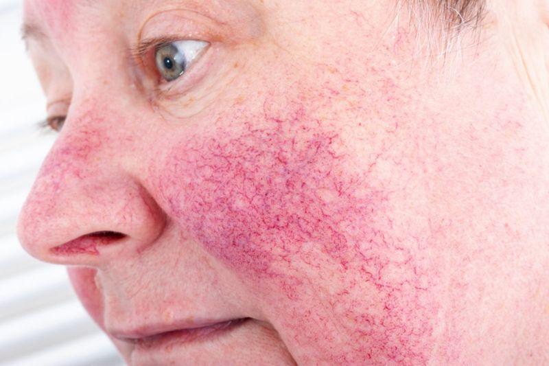 Rosacea may lead to rhinophyma