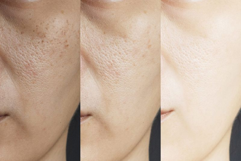 hyperpigmentation before after treatment