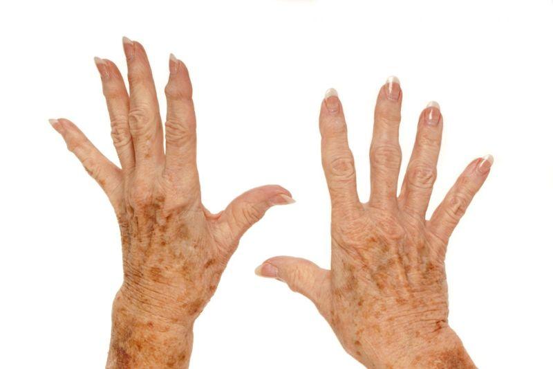 liver spots elderly woman arms