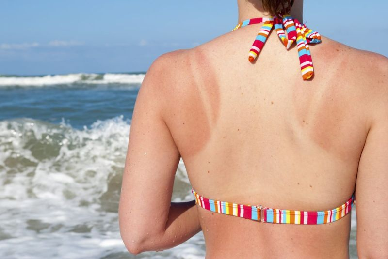 woman swimsuit beach sunburn tan