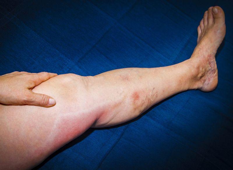Phlebitis on leg