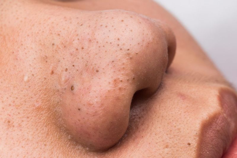 The Formation of Blackheads