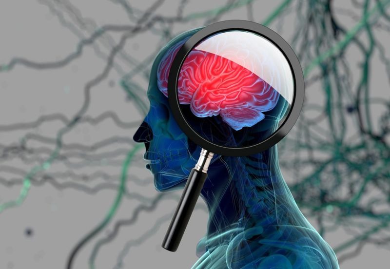 Brain with magnifying glass