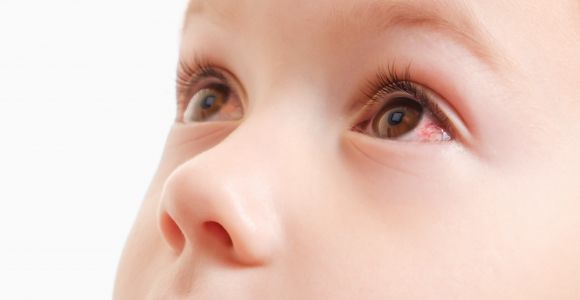 10 Home Remedies for Pink Eye