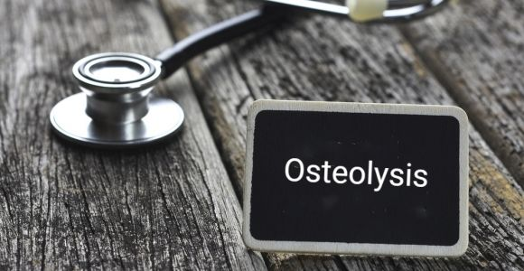 Causes, Effects, and Treatments of Osteolysis
