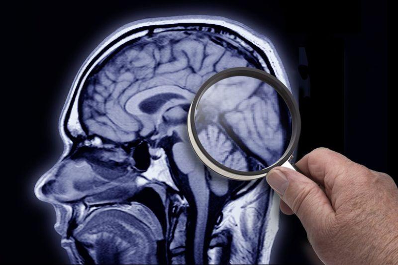 Brain MRI White Matter