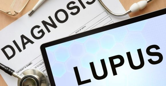 Treatments for Lupus
