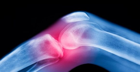 10 Causes of Inflammation