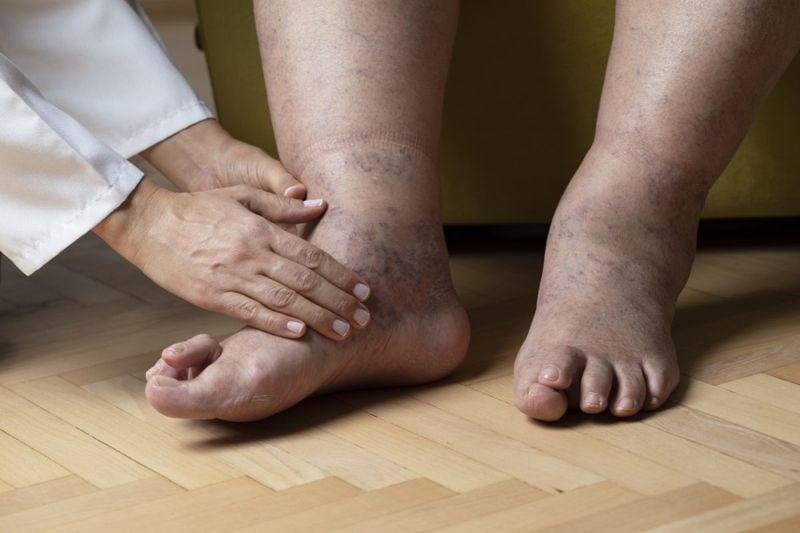 edema foot swelling