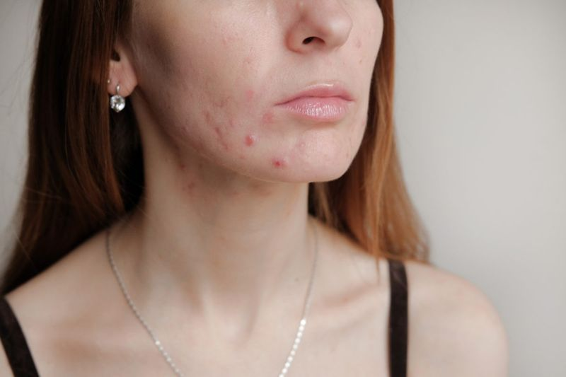 Collagen production creates scar tissue