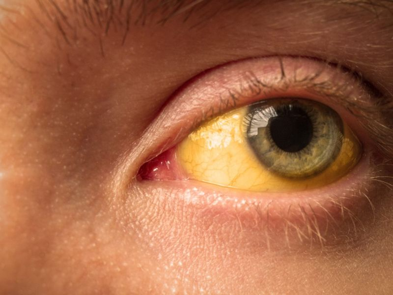 Jaundice Eyes Skin
