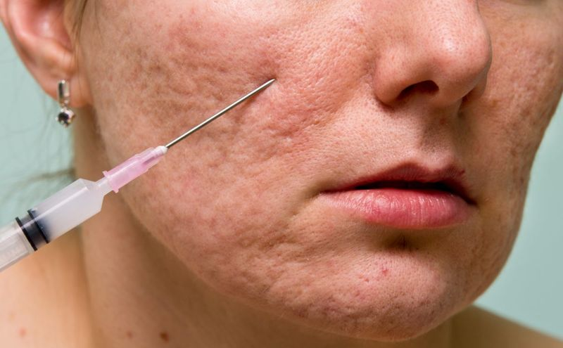 Acne scars can be filled