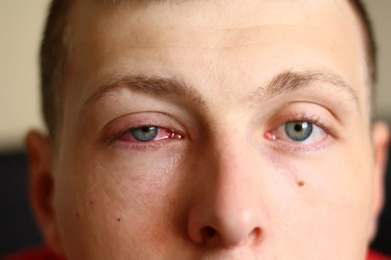 contagious pink eye
