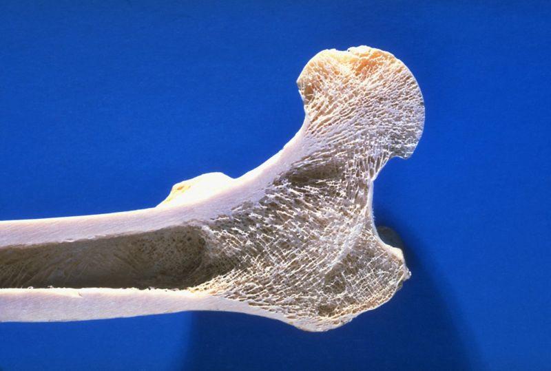 Bone Marrow Cells