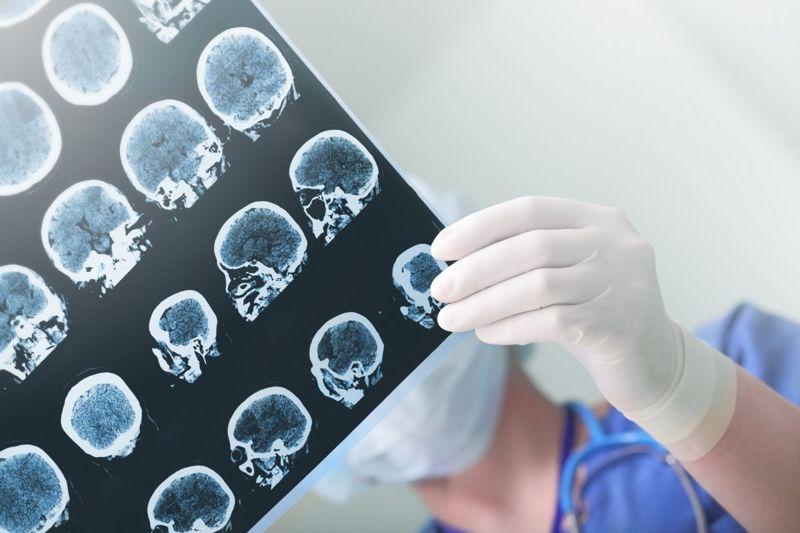 medical imaging scans brain