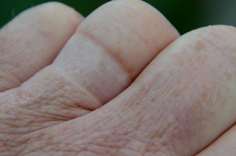 ring tight finger