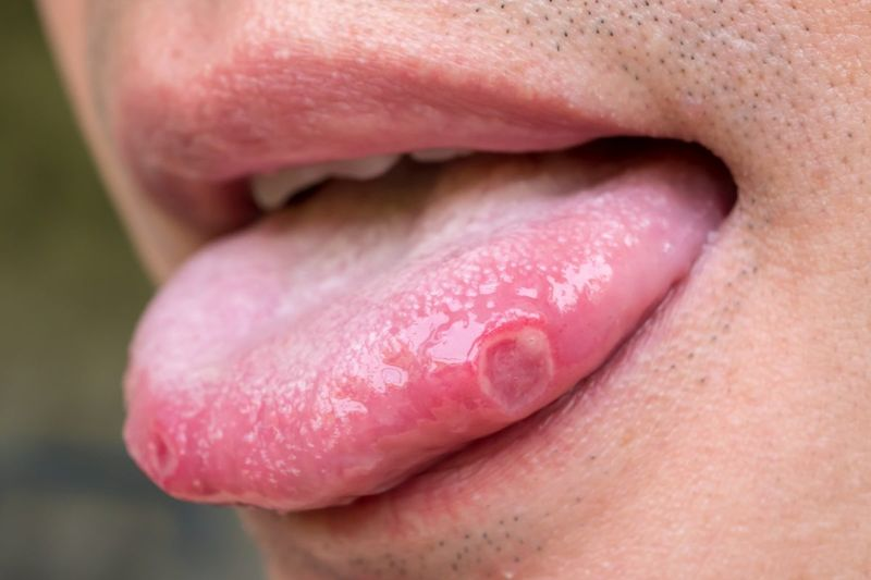 Canker sores on the tongue